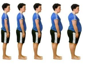 Obézní pacienti se stávají pro zdravotní systém Velké Británie závažím. Foto: Viewzone.com